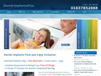 dental-implants4you.co.uk