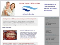 dental-implant-alternatives.co.uk
