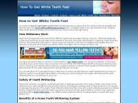 howtogetwhiteteethfast.net
